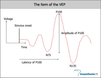 Evoked potentials visual visual evoked response for Motor evoked potential monitoring