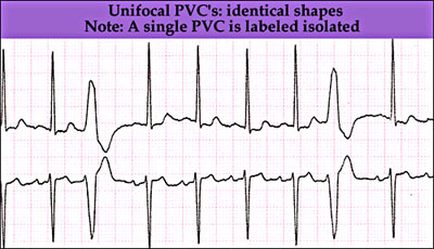 Unifocal premature ventricular complexes