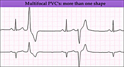Multifocal premature ventricular Complexes