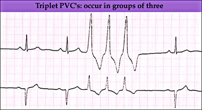anaesthesia uk ventricular arrhythmias